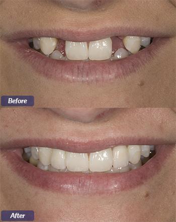 dental implants little rock ar