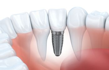 Little Rock AR Tooth Replacement Dentist