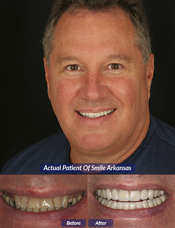 little rock cosmetic dentist restorations