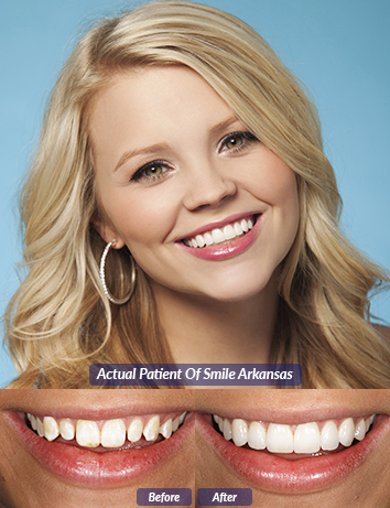 no prep dental veneers in little rock ar