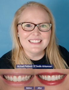 patient of smile arkansas