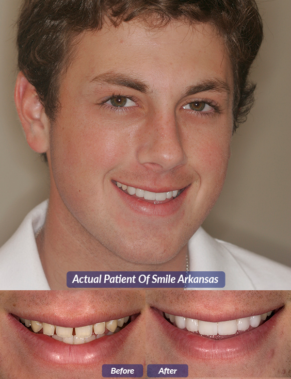Dental Veneers in Little Rock Arkansas : Smile Arkansas