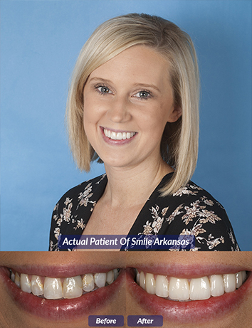 root canal in little rock ar
