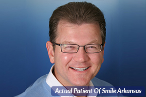 Why Choose Smile Arkansas : Smile Arkansas